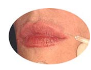 Buy Fillers for lips
