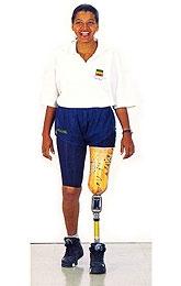 Comprar Prótesis para desarticulado de rodilla: