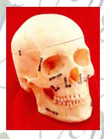 Productos Cráneo-Maxilo-Facial