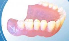 Prosthodontic tables