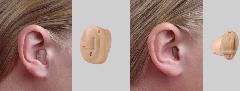 Audífonos intracanales e invisibles Intuir 2