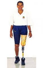 Prótesis para desarticulado de rodilla: