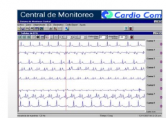 Central de Monitoreo Modelo CM91