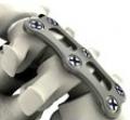 Implantes quirúrgicos - reflex hybrid