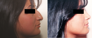 Pedido Cirugía estética nasal