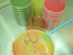 Estudios Microbiologicos