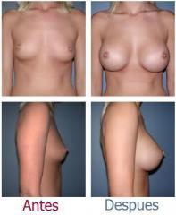 Aumento de mamas, Implantes mamarios