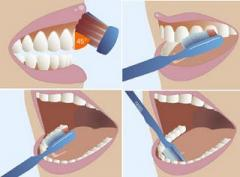PREVENCION DE CARIES