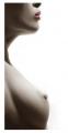 Reducción de mamas (Mastoplatía reductora)